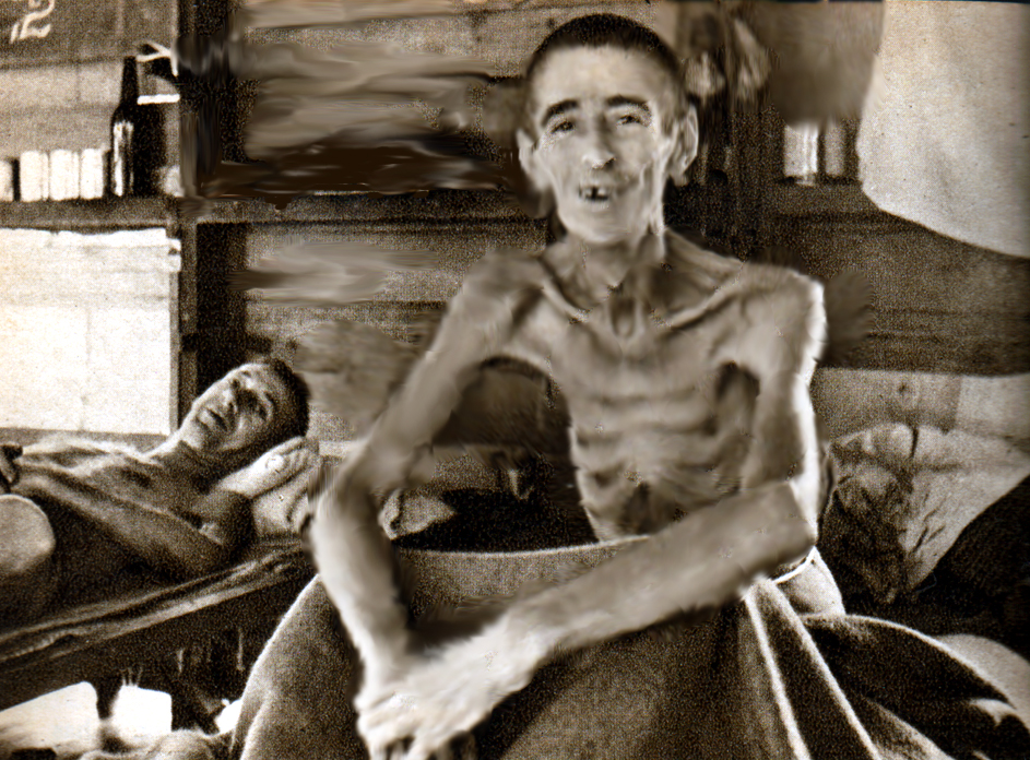Few photos survive of just how skeletal the Outram Road Gaol survivors were when they got to Changi. This is British POW 'Becky' Sharpe, who is grinning because the photo was taken in the Changi Hospital and the war was over. (Photo: Illustrated London News)